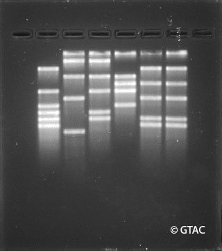 The DNA profiles of suspects from the case